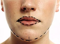 Cosmetic Surgery in Spain